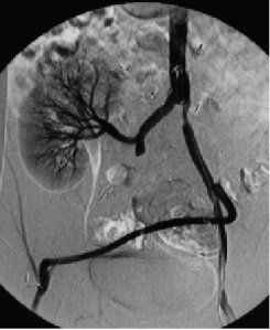 angiography pic