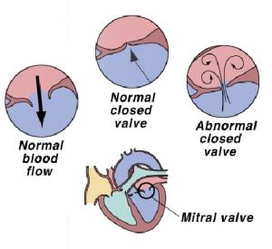 mitral valve