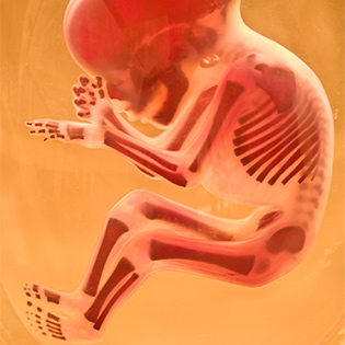 fetal-development-skeletal-system-article