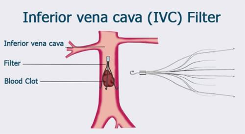 ivc-filter-diagram-min