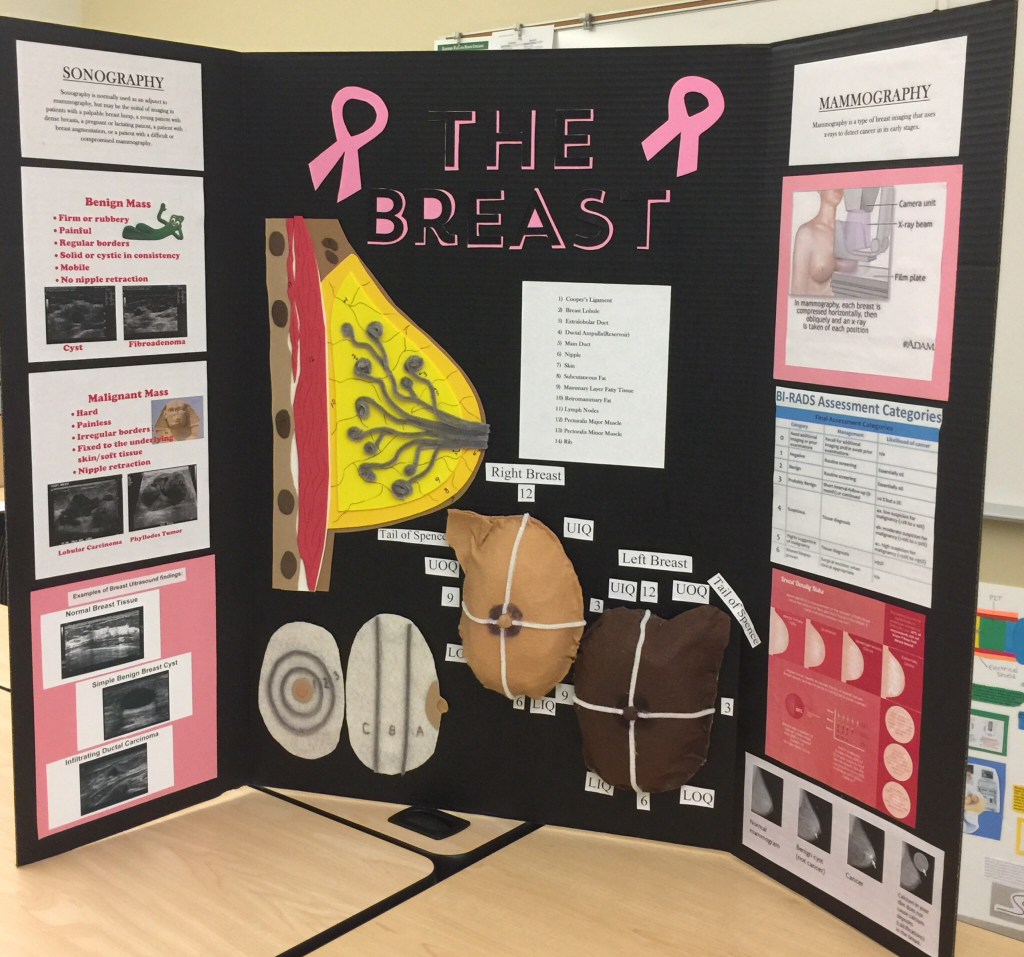 October is Breast Cancer Awareness Month: Cross-Sectional Anatomy ...